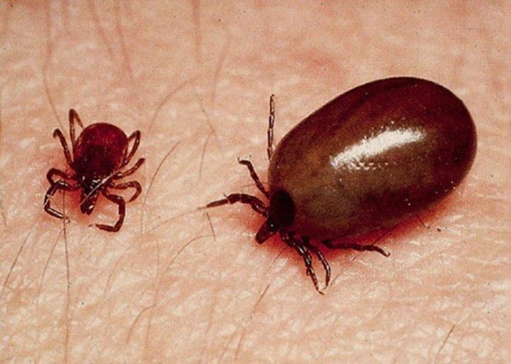 25 scrub typhus infected people in Gorkha » Meroshare